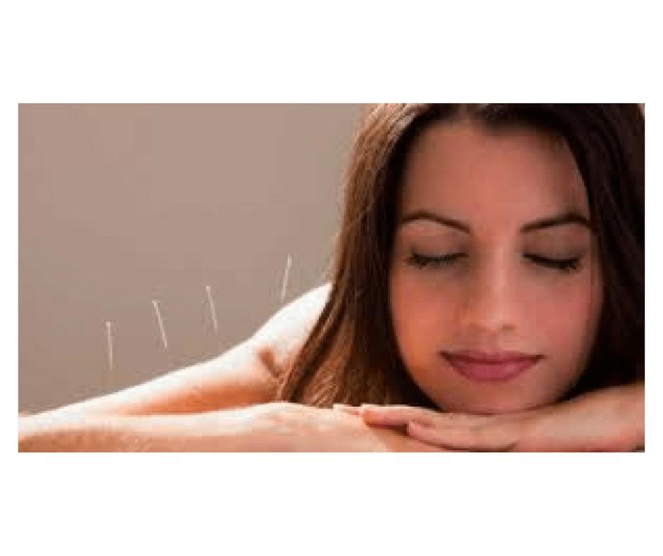 acupuntura imunidade