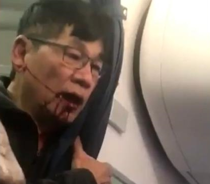 Dr. David Dao, photo after he returned to the aircraft.