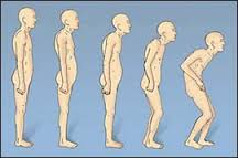 Posture changes with age