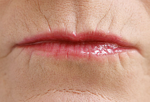 Narrow lips on older woman with bad lipstick