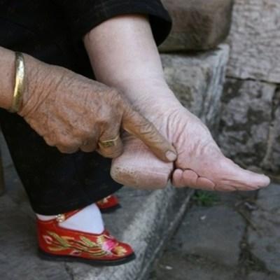 The deformed bound foot