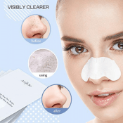 Amazon: 32-ct Blackhead Removing Pore Strips $6.79 (Reg. $13.99)