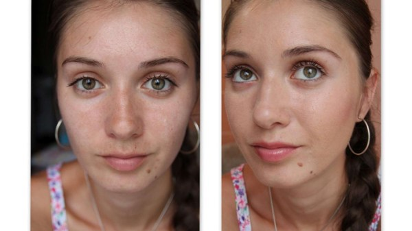 Механическая чистка лица, что это такое * Фото до и после ...