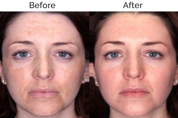 Пилинг Джесснера отзывы * От морщин, фото лица до и после ...