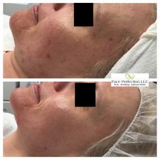 Acne Free Action Plan + Ultimate Rejuvenation Package. Your results may vary.
