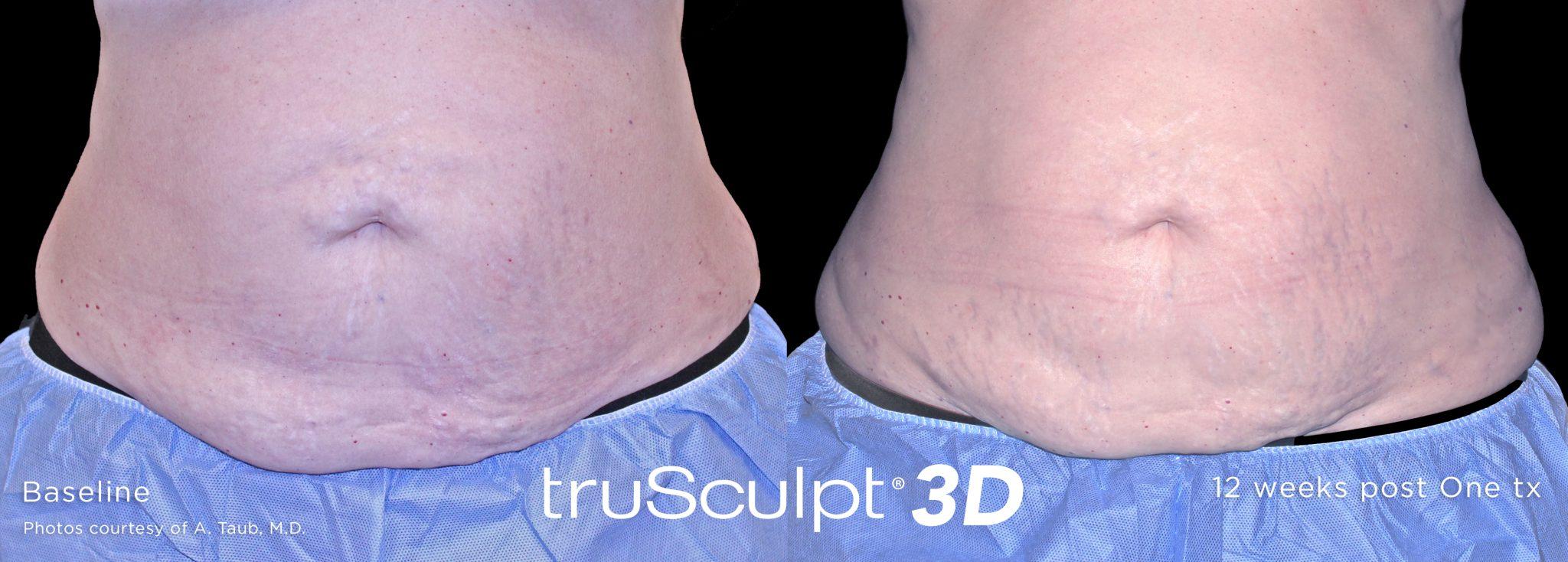 truSculpt_3D_4