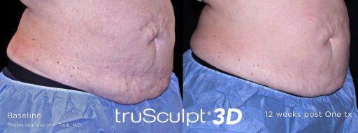 trusculpt_3d_13-e1525827331207