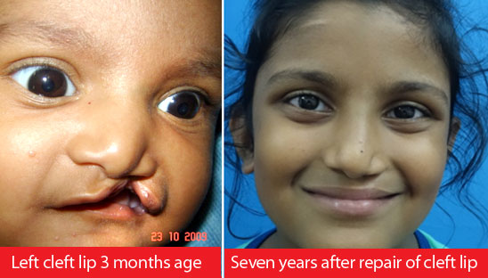 Cheiloplasty Surgery in India
