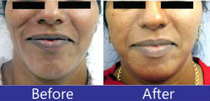 Fat augmentation on the face before after