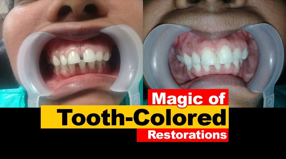 Magic of Tooth colored Restorations or Fillings