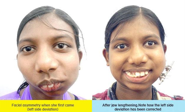 facial asymmetry correction surgery in India