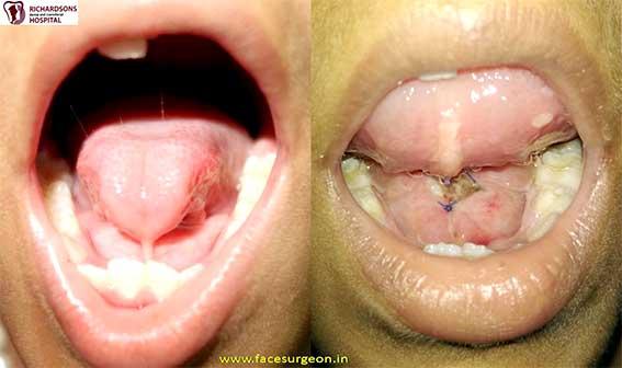 Ankyloglossia treatment in India