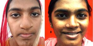 Cleft Lip Surgery in Nagercoil