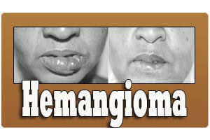 Craniofacial Hemangioma Treatment in India