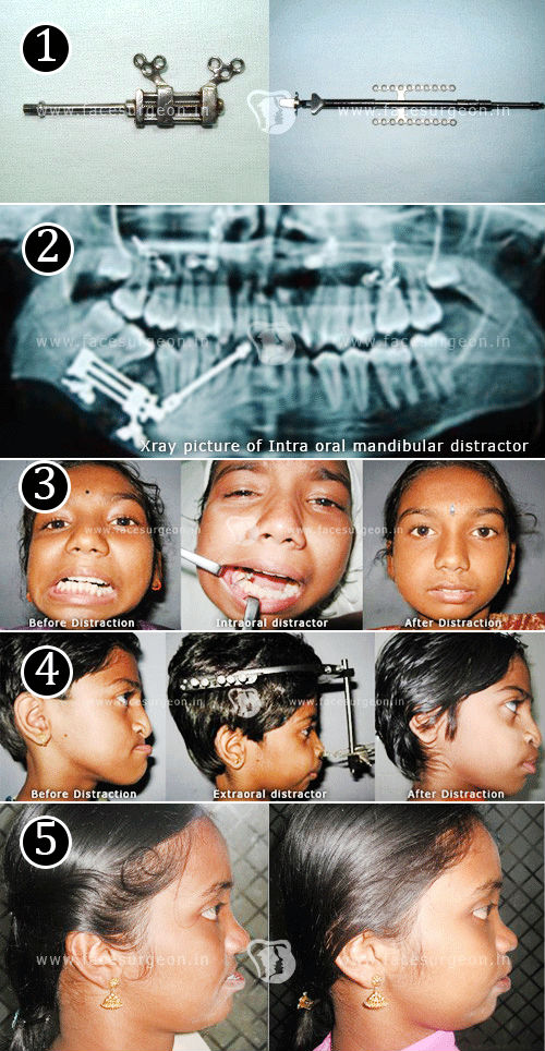 Distraction Oestogenisis surgery in India