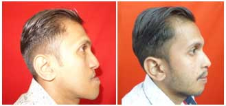 jaw deformity surgery in tamilnadu
