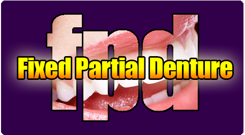 Fixed Partial Dentures
