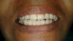 hybrid dental implants in india