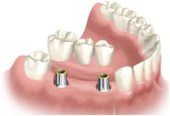 dental implant surgeon in Nagercoil
