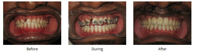 Orthodontic treatment in India