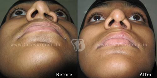 Rhinoplasty-nose-surgery