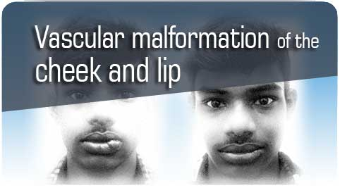 Vascular malformation treatment in Nagercoil