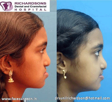 cleft lip and palate surgery in India