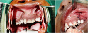 gingivoalveoperiosteoplasty surgery in Nagercoil