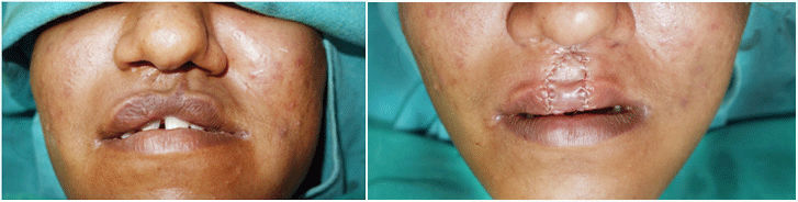 lip revision Surgery in India