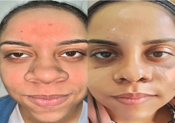 Before and after cleft lip rhinoplasty surgery in india