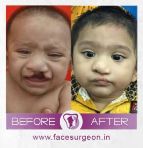 Cleft Lip Surgery in India