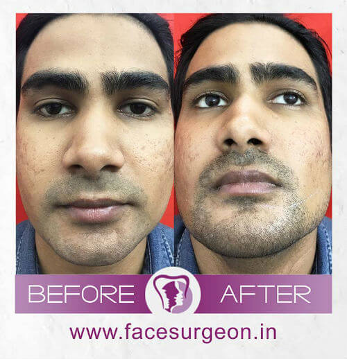 Rhinoplasty Surgery before and after picture