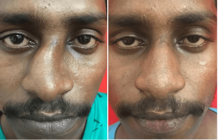 before after cleft lip rhinoplasty in india