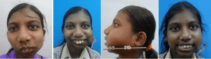 temporomandibular joint surgery in india