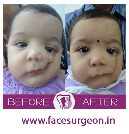 Child cleft palate surgery in india