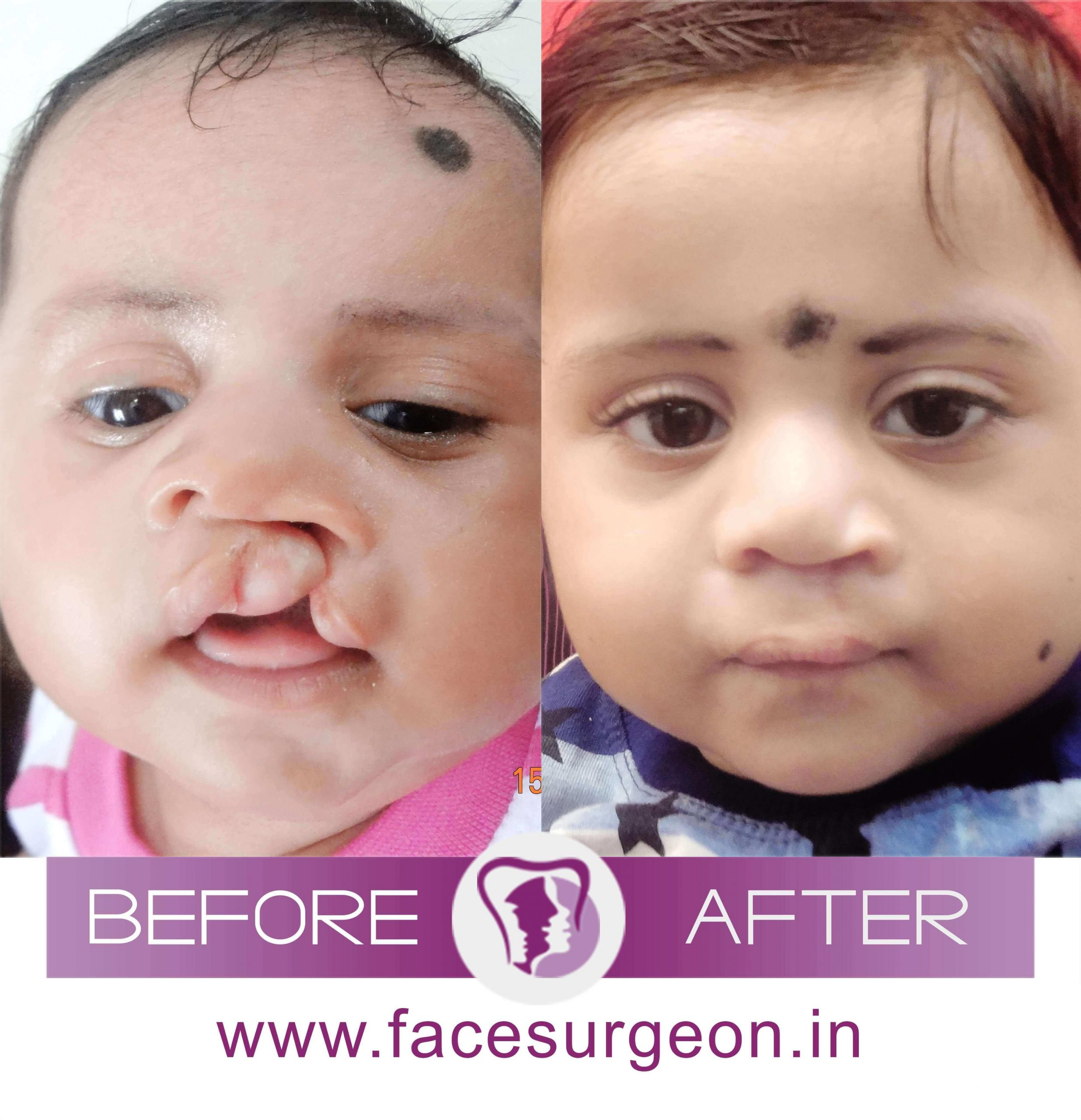Cleft Lip Surgery treatment