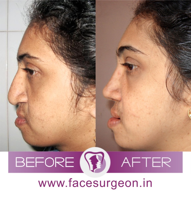 Nose Reshaping Surgery in India