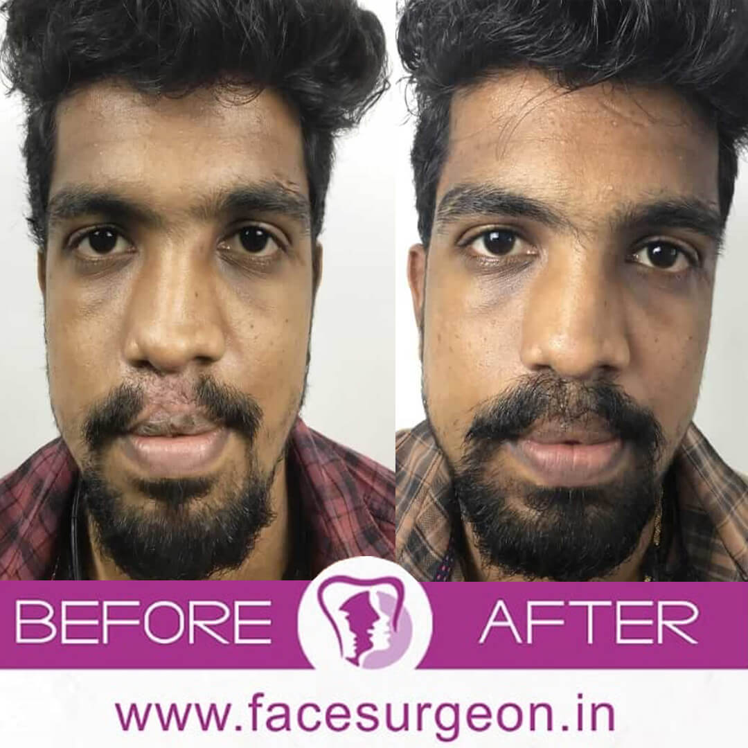 Moustache Transplant Surgery in India