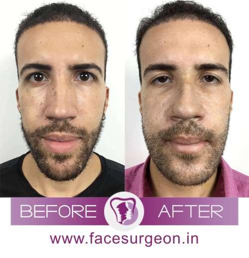 Nasal Bridge Surgery