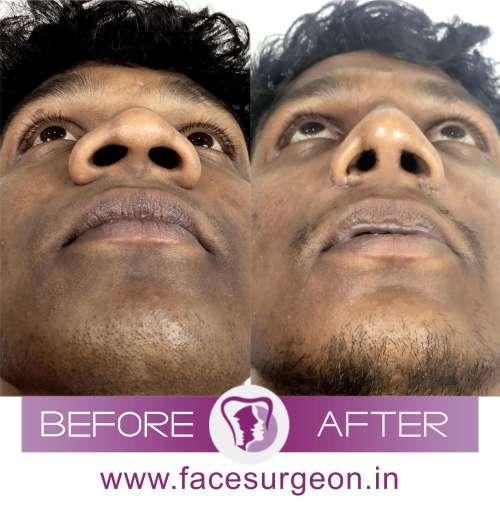 Nose Deformity Surgery Procedure