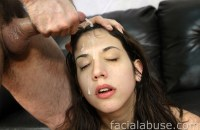 Facial Abuse Logan Sinns 2