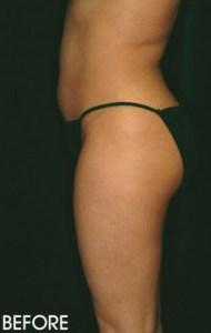 Liposuction Before After Sacramento