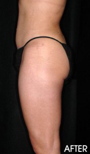 Liposuction Before After Sacramento