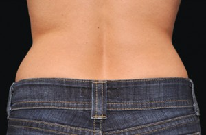 Coolsculpting Before After Sacramento