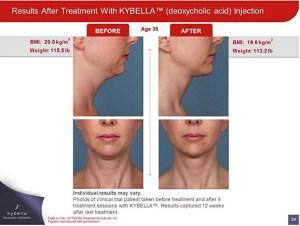 Kybella Sacramento Double Chin Treatment