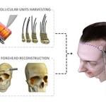 Single Procedure Forehead and Hairline Feminization