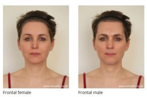 Forehead Reconstruction with Simultaneous Hair Transplant