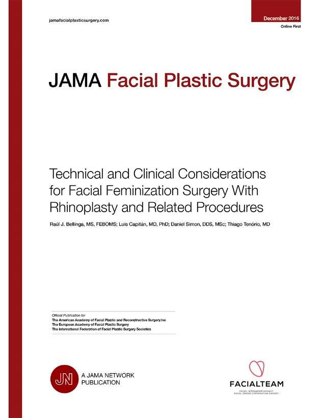 facial feminization with rhinoplasty