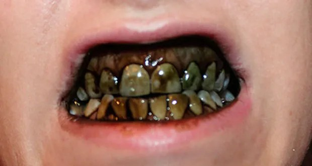 how to know if a tooth is dying