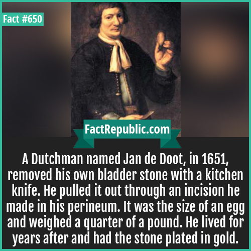 650. Jan de Doot-A Dutchman named Jan de Doot, in 1651, removed his own bladder stone with a kitchen knife. He pulled it out through an incision he made in his perineum. It was the size of an egg and weighed a quarter of a pound. He lived for years after and had the stone plated in gold.